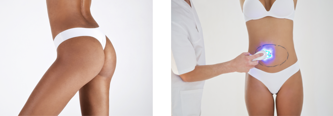 Benefits and Advantages of High Definition Liposuction