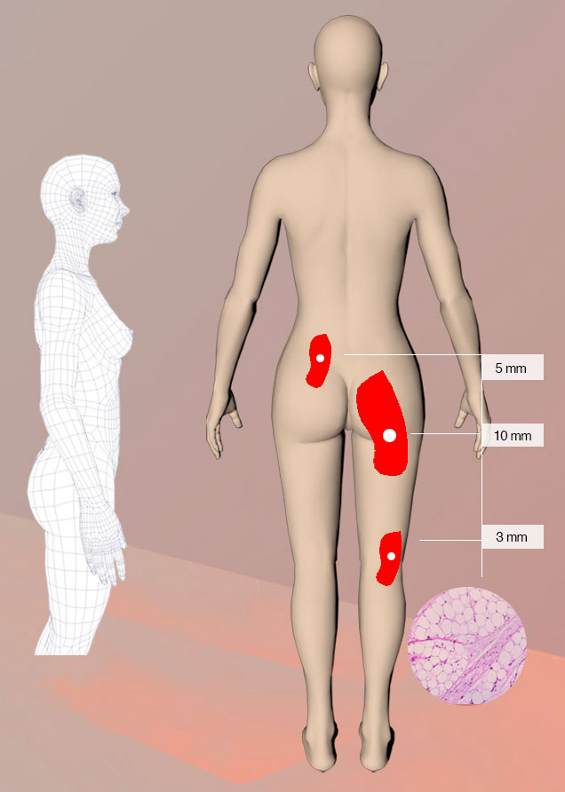 3l 3d-hd scan of body fat