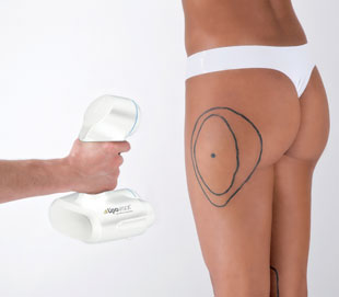 differences between traditional liposuction and liposuction with Lipovisor™