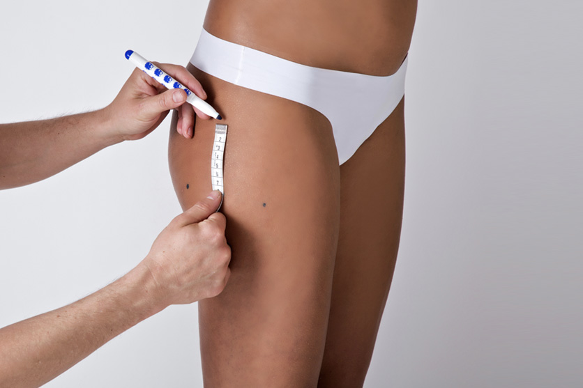 measuring the areas subject to aspiration during HD liposuction