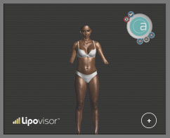 example screenshot software for high definition liposuction