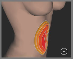 Intuitive interface for high definition liposuction